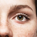 Best Treatments for Freckle Removal
